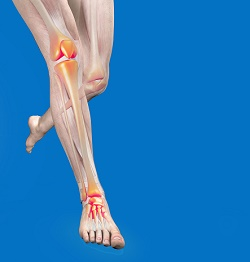 Anatomical model running with bones highlighted, showing pain from medial tibial stress syndrome, or shin splints.